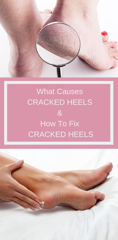 What Causes Cracked Heels & How To Fix Cracked Heels