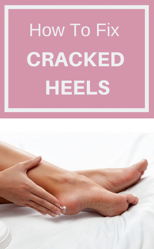 How To Fix Cracked Heels